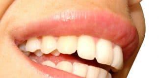 dent blanche