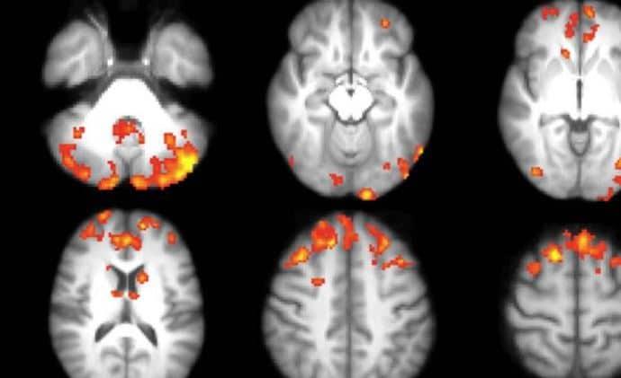 Image scanner sclerose en plaques