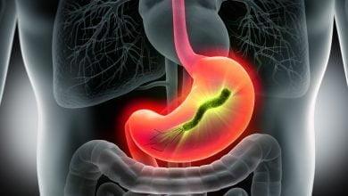 Helicobacter pylori dans l estomac