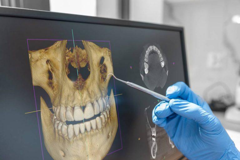 Cone beam : les nouveaux standards de la chirurgie dentaire